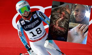 Ladies´ Alpine Combined - Slalom / Bild: (c) Getty Images (Doug Pensinger)