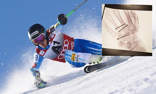 Audi FIS Alpine Ski World Cup - Men´s Giant Slalom / Bild: (c) Getty Images (Alain Grosclaude/Agence Zoom)